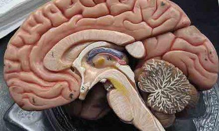 Qué diferencia hay entre migraña y accidente cerebrovascular