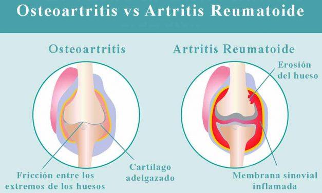 Qué diferencia hay entre osteoartritis y artritis reumatoide
